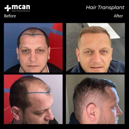 hair-transplantation-105