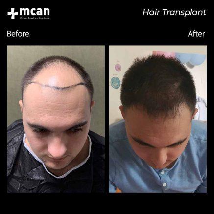 hair-transplantation-106