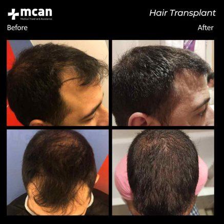 hair-transplantation-107
