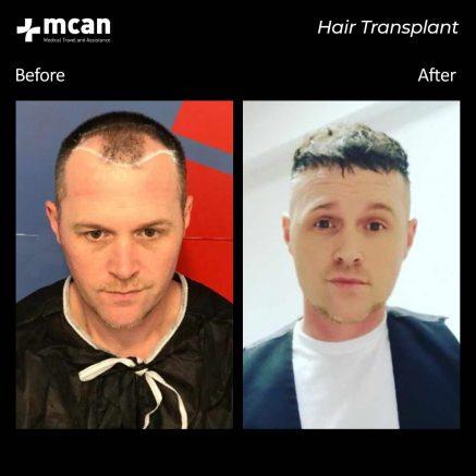 hair-transplantation-108