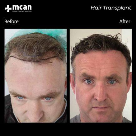 hair-transplantation-109