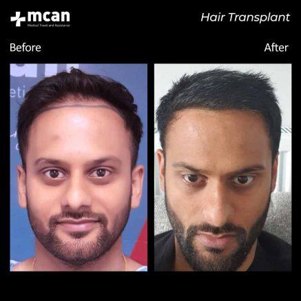 hair-transplantation-110