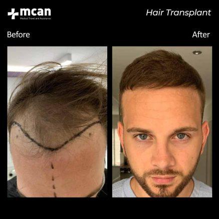 hair-transplantation-111