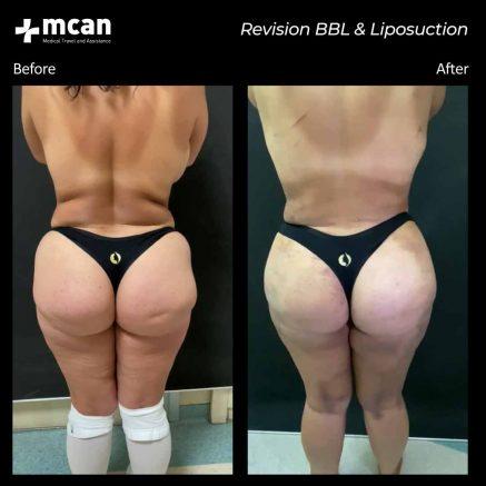 10.07.20-bbl-liposuction