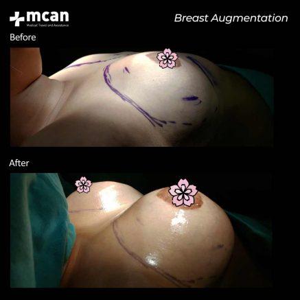 10.07.20-breast-augmentation