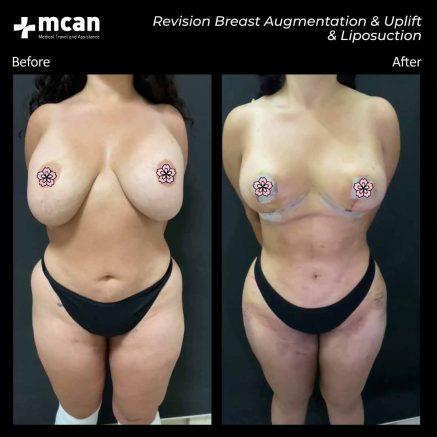 10.07.20-breast-augmentation-uplift-liposuction