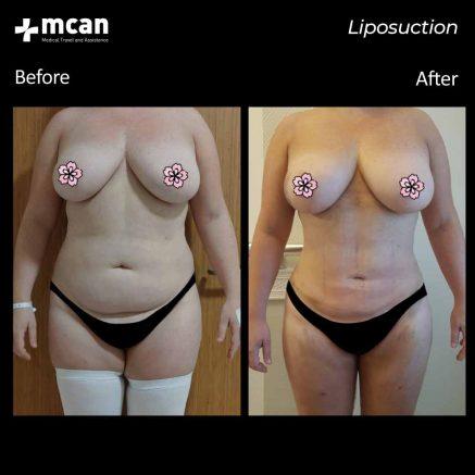 10.07.20-liposuction