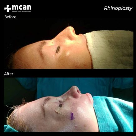 10.07.20-rhinoplasty