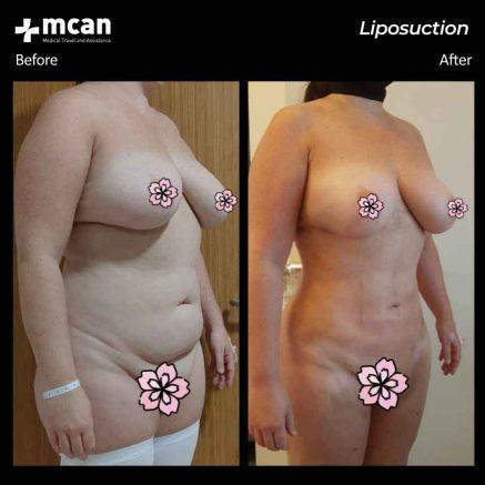 21.07.20-liposuction
