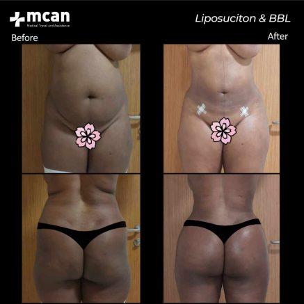21.07.20-liposuction-bbl-2