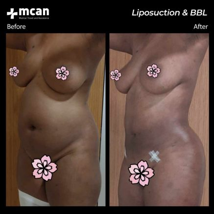 21.07.20-liposuction-bbl
