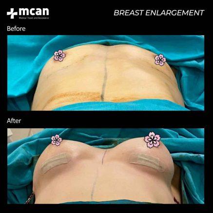 23.07.20-breast-enlargement