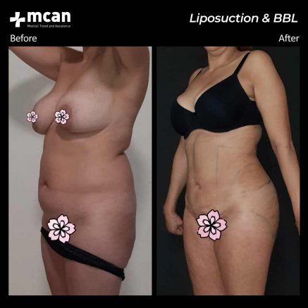 23.07.20-liposuction-bbl-2