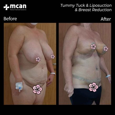 30.07.20-tummy-tuck-liposuction-breast-reduction