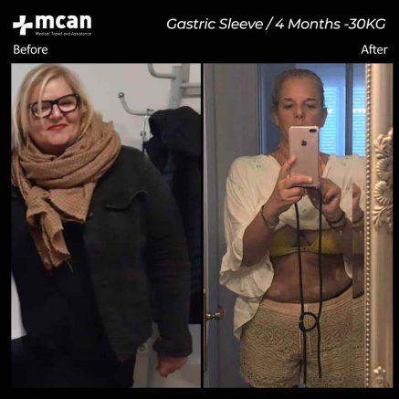 gastric-sleeve-29