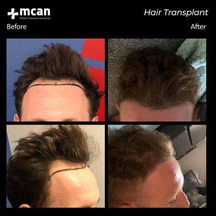 hair-transplantation-113