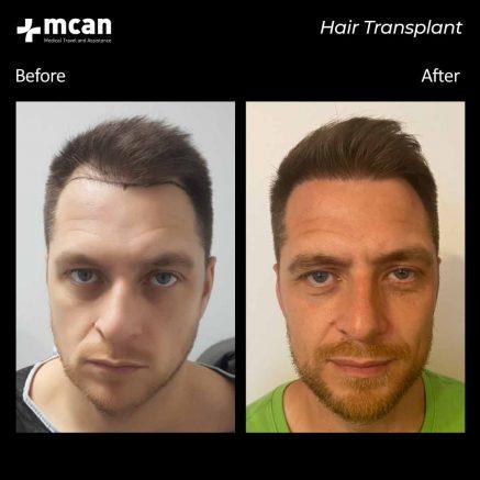hair-transplantation-114