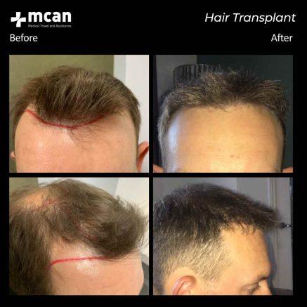 hair-transplantation-115