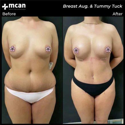 07.08.20-breast-augmentation-tummy-tuck