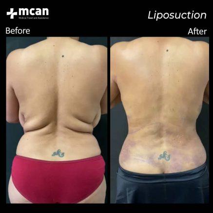 07.08.20-liposuction