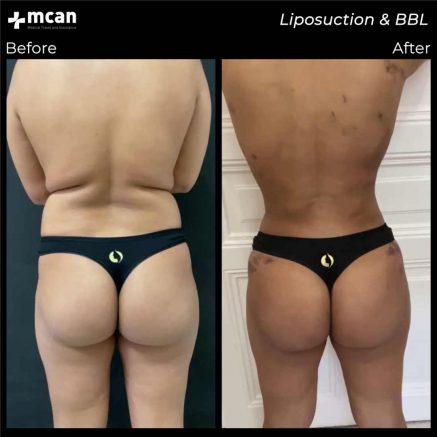 07.08.20-liposuction-bbl