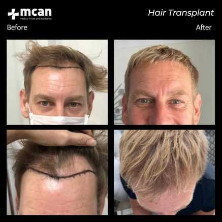 11.08.20-hair-transplant
