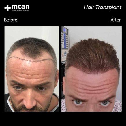 17.08.20-hair-transplant