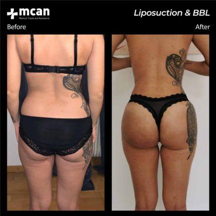 17.08.20-liposuction-bbl-2