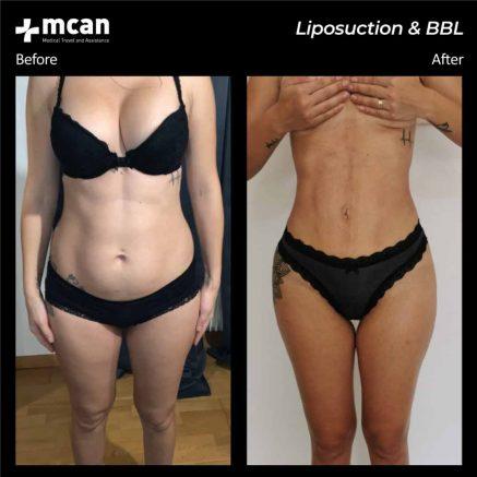 17.08.20-liposuction-bbl