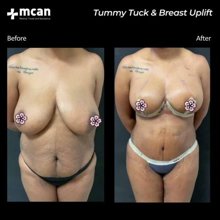 17.08.20-tummy-tuck-breast-uplift