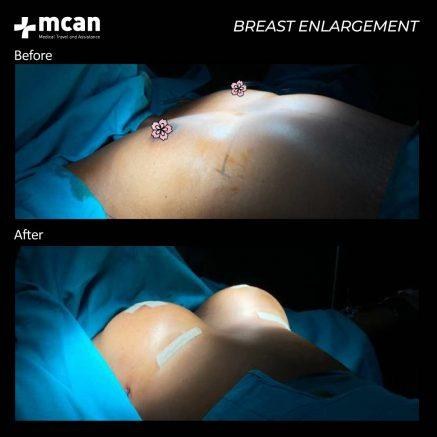 22.08.20-breast-enlargement