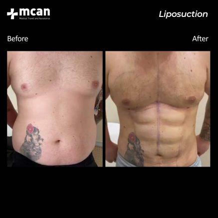 22.08.20-liposuction