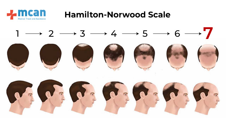 Escala Hamiloton-Norwood