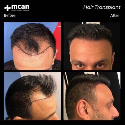01.09.20-hair-transplant-1