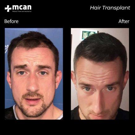 01.09.20-hair-transplant-2