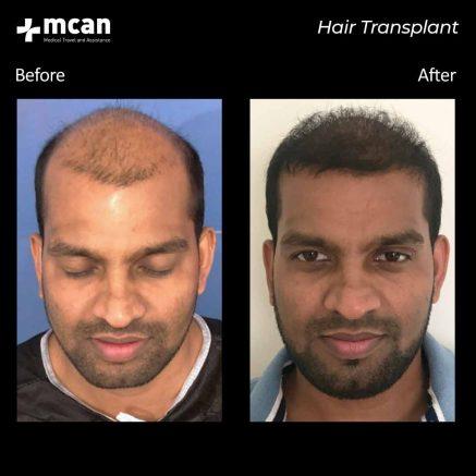 01.09.20-hair-transplant-3