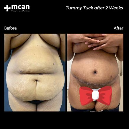 01.09.20-tummy-tuck-after-2-weeks