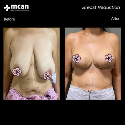09.09.20-breast-reduction