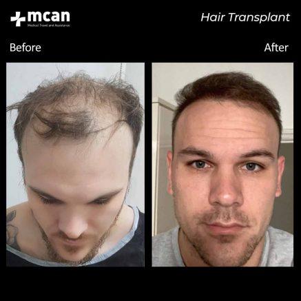 09.09.20-hair-transplant