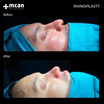 09.09.20-rhinoplasty