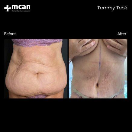 09.09.20-tummy-tuck