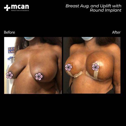 21.09.20-breast-augmentation-uplift-round-implant