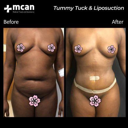21.09.20-tummy-tuck-liposuction