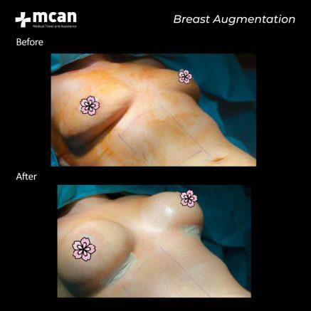 30.09.20-breast-augmentation-2