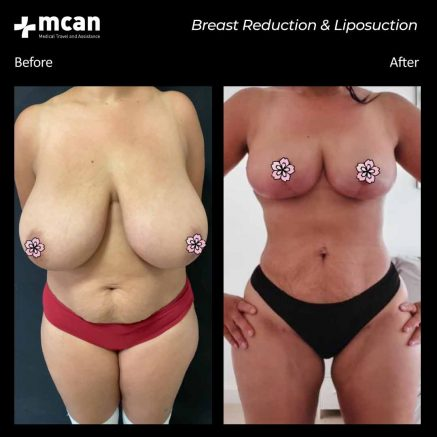 30.09.20-breast-reduction-liposuction