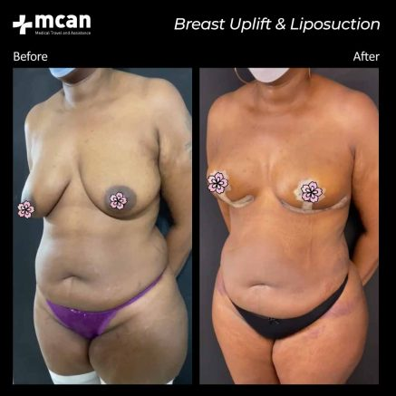 30.09.20-breast-uplift-liposuction