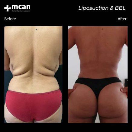 30.09.20-liposuction-bbl