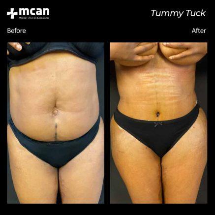 30.09.20-tummy-tuck-1