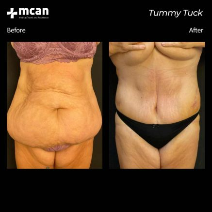 30.09.20-tummy-tuck-2