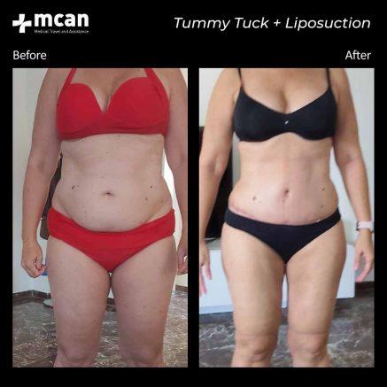 07.10.20-tummy-tuck-liposuction